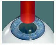 tratamentul vederii cu laser